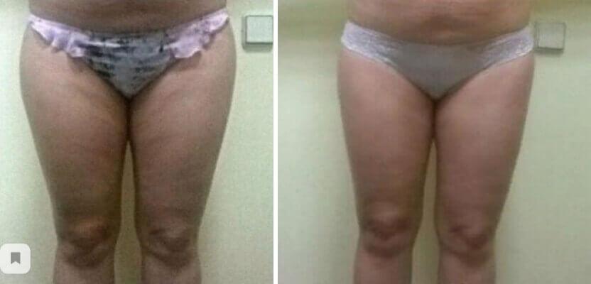 Антицеллюлитный массаж до и после фото