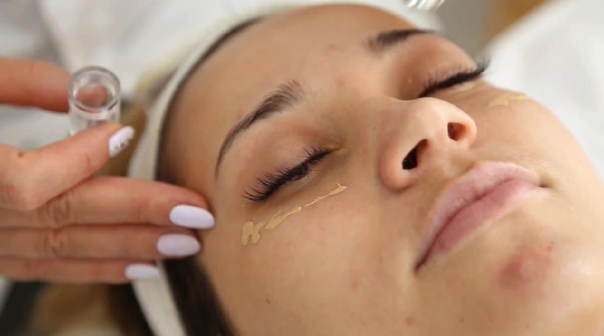 Как очистить поры на лице? Избавиться от черных точек помогут домашние рецепты красоты
