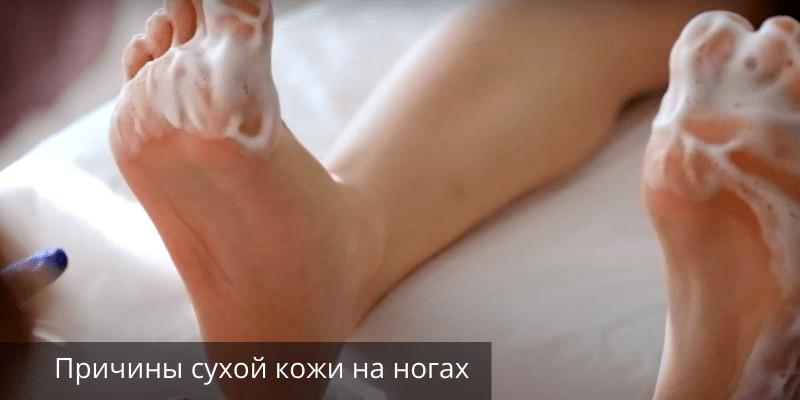 Сухая кожа на ногах